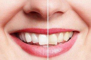 estetica-dental-en-navarra