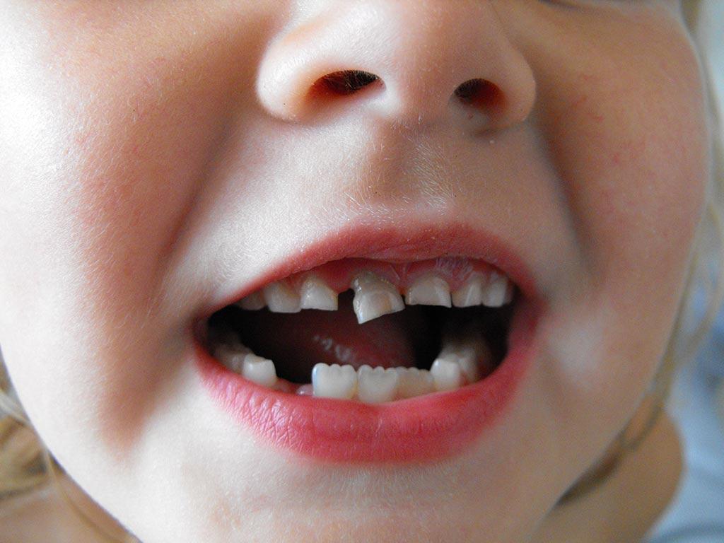 nino-dental