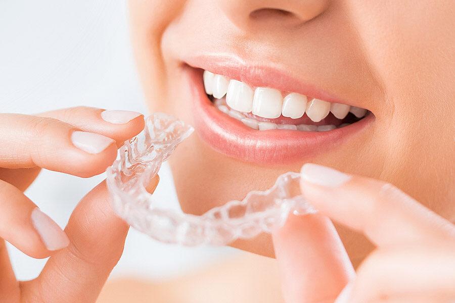 Ventajas de usar ortodoncia invisible Invisalign